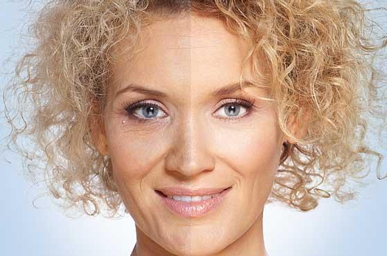 Superficial Level 2 Skin Peels